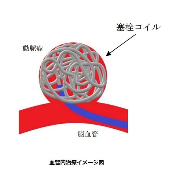 カネカ、「脳動脈瘤塞栓コイル」を米国でも発売