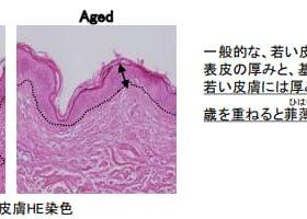 アテニア、タンパク質「キンドリン(Kindlin-1)」が抗老化に働く可能性を発見