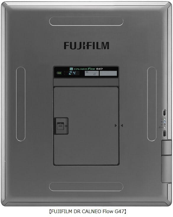 富士フイルム、カセッテサイズデジタルX線画像診断装置「FUJIFILM DR CALNEO Flow」