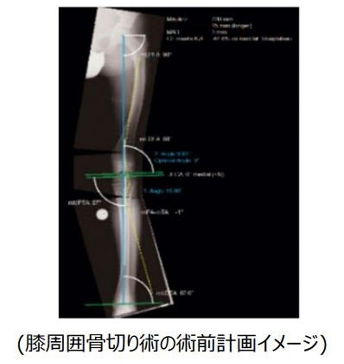 東陽テクニカ、整形外科デジタルプランニングツール「mediCAD」シリーズの新バージョン