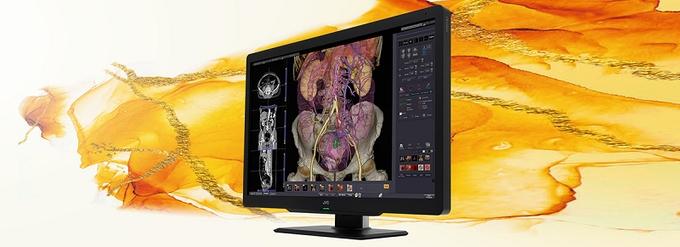 JVCケンウッド、医用画像表示モニター「i3シリーズ」から30型・600万画素カラー液晶モニター「CL-S600」