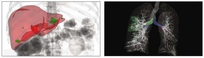 ジーデップ・アドバンス、NVIDIA社の医療系プラットフォームに対応したヘルスケア向けソリューションモデル4機種