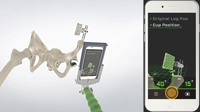 ジンマー・バイオメット、iPhoneを使用した「AR Hip Navigationシステム」